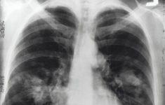 Генетические мутации вызывают опухоли лёгких у некурящих