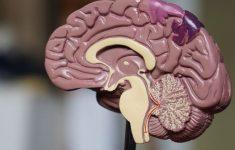 Расположение метастазов в головном мозге не является случайным